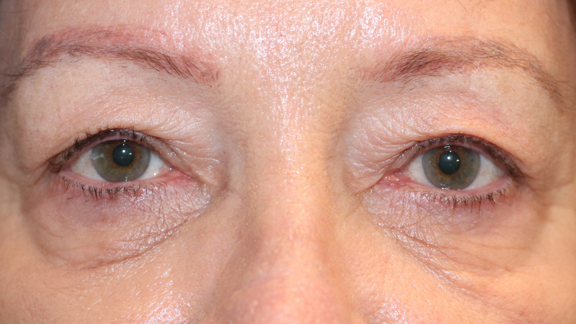 Blepharoplasty Upper eyelid surgery image depicting excess skin on the upper eyelid. Sydney Oculoplastic surgeon Dr Anthony Maloof can restore a youthful and fresh appearance.